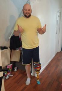 perna-206x300-206x300 Britânico improvisa 'perna de Lego' enquanto espera prótese ficar pronta