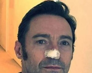 hughjackman-310x245-300x237 Wolverine no cinema, Hugh Jackman trata novo câncer de pele