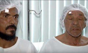 TRANSPLANTE3-300x182 Filho doa células-tronco da córnea para pai recuperar a visão