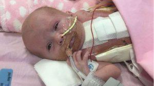 bebe-300x169 Bebê que nasceu com coração fora do corpo supera expectativas e se recupera