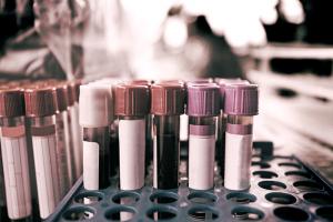 exame_de_sangue_istock-300x200 Novo exame de sangue detecta 8 tipos de câncer com 70% de precisão