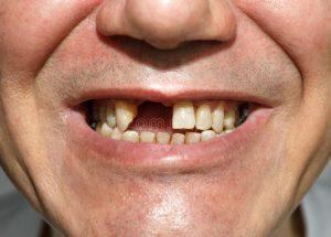 sorriso-sem-dentes-68112913-300x215 Promotoria de Justiça recomenda que Prefeitura de Sumé conclua tratamentos dentários de pacientes