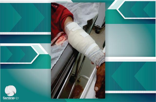 DSC1225 Queda de cavalo deixa dois gravemente feridos m Sertânia