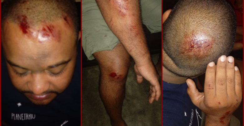 jackson-monteiro-780x405 Caririzeiros são agredidos e têm carro roubado na zona rural da cidade de São José do Egito