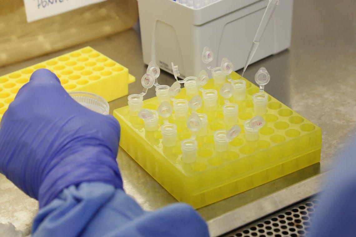 diagnostico_laboratorial_de_casos_suspeitos_do_novo_coronavirus_2801209411 Covid-19: Brasil registra 1.022 mortes em 24h; casos ultrapassam 1 milhão