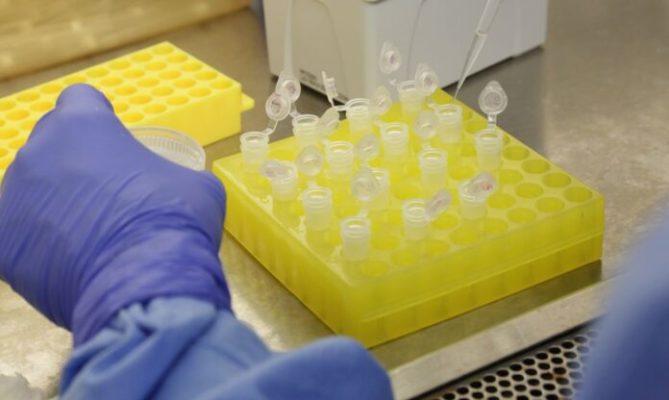 Laboratório-Coronavírus-Foto-Divulgação-Josué-Damacena-IO-1-696x416-1-669x400 Número de pacientes na UTI com suspeita de coronavírus sobe 83% na PB