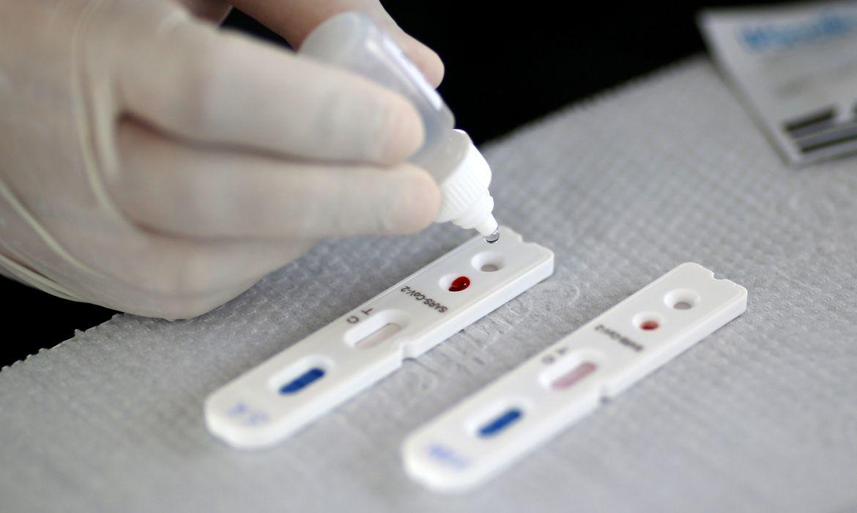 TESTE Pesquisadores desenvolvem testes rápidos para detectar coronavírus