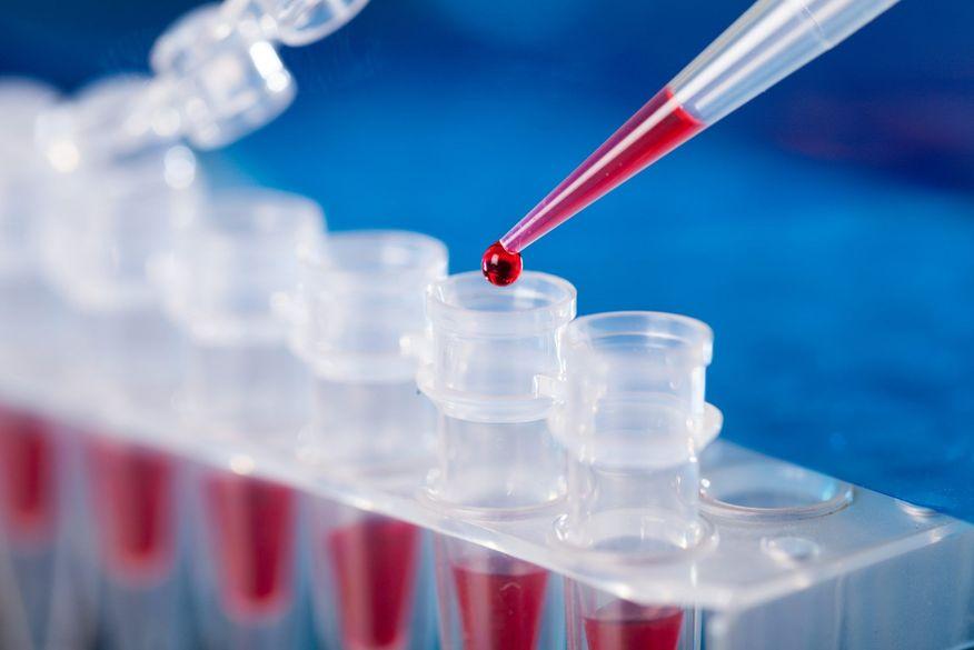 blood-test_1-scaled-1 Paraíba confirma 1.746 novos casos de Covid-19 em 24h