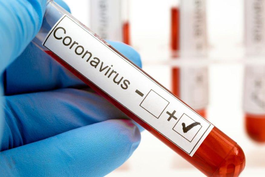 corona02 Secretaria Municipal de Saúde de Monteiro informa sobre 10 novos casos de Covid