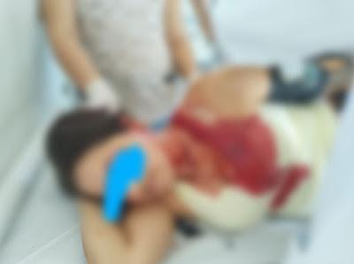 mulher-agredida Mulher é agredida a paulada pelo primo no Cariri por causa de discussão sobre terreno